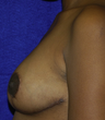 25-34 year old woman treated with Breast Reduction