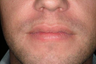 25-34 year old man treated with Lip Augmentation
