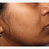 35-44 year old woman treated with PicoWay, for post inflammatory pigmentation