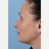 45-54 year old woman treated with Rhinoplasty