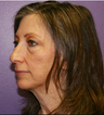 Cheek lift with eyelids and laser