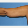 35-44 year old woman treated with Arm Lift