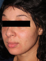 25-34 year old woman treated with Fraxel Laser