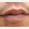 25-34 year old man treated with Facial Reconstructive Surgery