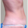 45-54 year old woman treated with Tumescent Liposuction