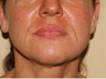 35-44 year old woman treated with Thread Lift done by Dr. Nancy Kim