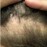 34 year old man treated with Scars Treatment