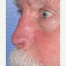 Full-thickness Nasal and Cheek Reconstruction using Forehead and Cheek Flaps after Mohs Surgery