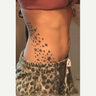25-34 year old female treated with SculpSure
