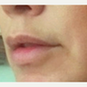 35-44 year old woman treated with Lip Lift