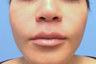 25-34 year old woman treated with Lip Augmentation
