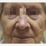 65-74 year old woman treated with Fractora RF for full face skin tightening