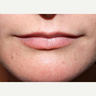 Woman treated with Lip Augmentation