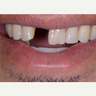 25-34 year old man treated with Dental Implants