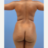 29 y.o. Brazilian Butt Lift: 1200cc per side Lipo abdomen, flanks, back w/ fat transfer to buttocks
