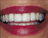 Repaired and replaced old broken dental crowns