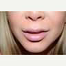 25-34 year old woman treated with Lip Lift