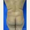 Liposuction Revision