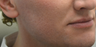 35-44 year old man treated with Acne Scars Treatment