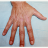 45-54 year old woman treated with Radiesse to her hands
