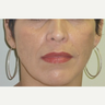 45-54 year old woman treated with Age Spots Treatment