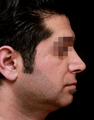 25-34 year old man treated with Rhinoplasty