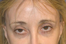 55-64 year old woman before and after revision blepharoplasty