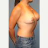 25-34 year old woman treated with Breast Lift