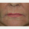 45-54 year old woman treated with Hetter Chemical Peel