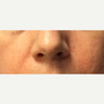 45-54 year old woman treated with Wrinkle Treatment