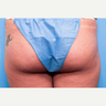 18-24 year old woman treated with Butt Lift