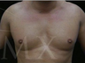 4D Lipo with fat transfer to pectorals