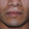 25-34 year old man treated with Cleft Lip Repair