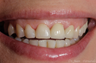 25-34 year old female treated with Dental Implants