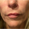 35-44 year old woman treated with Juvederm