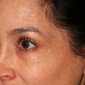 35-44 year old woman treated with Yag Laser