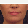 45-54 year old woman treated with Non Surgical Face Lift