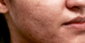 25-34 year old woman treated with Infini  and Bellafill