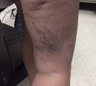 35-44 year old woman treated with Cutera's Excel V Vein Treatment
