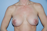 40 Year old female, Breast Augmentation with Mastopexy
