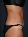 Mini Tummytuck & Liposuction