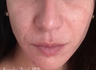 35-44 year old woman treated with Wrinkle Treatment