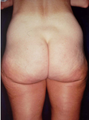 55-64 year old woman treated with Butt Lift