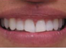 Invisalign - 40 Year Old Female, Extreme Crowding and Rotation, Occlusal Issues