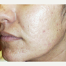 25-34 year old woman treated with Photodynamic Therapy