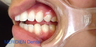 Repair Teeth Damaged by Grinding