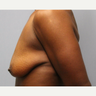 45-54 year old woman treated with Breast Lift with Implants