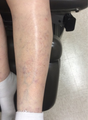 55-64 year old woman treated with Cutera's Excel V for Vein Treatment