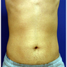 25-34 year old man treated with Exilis Elite Radio Frequency & Ultrasound on the Abdomen and flanks