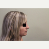 25-30 year old woman treated with Rhinoplasty